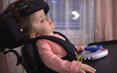 جراحی عجیب کوچک کردن جمجمه کودک دو ساله در کانادا